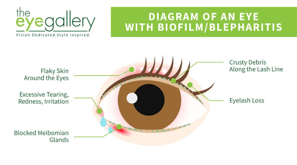 Biofilm Blepharitis Diagram