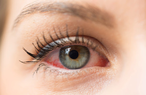 Dry eye symptoms can be similar, but causes can vary.