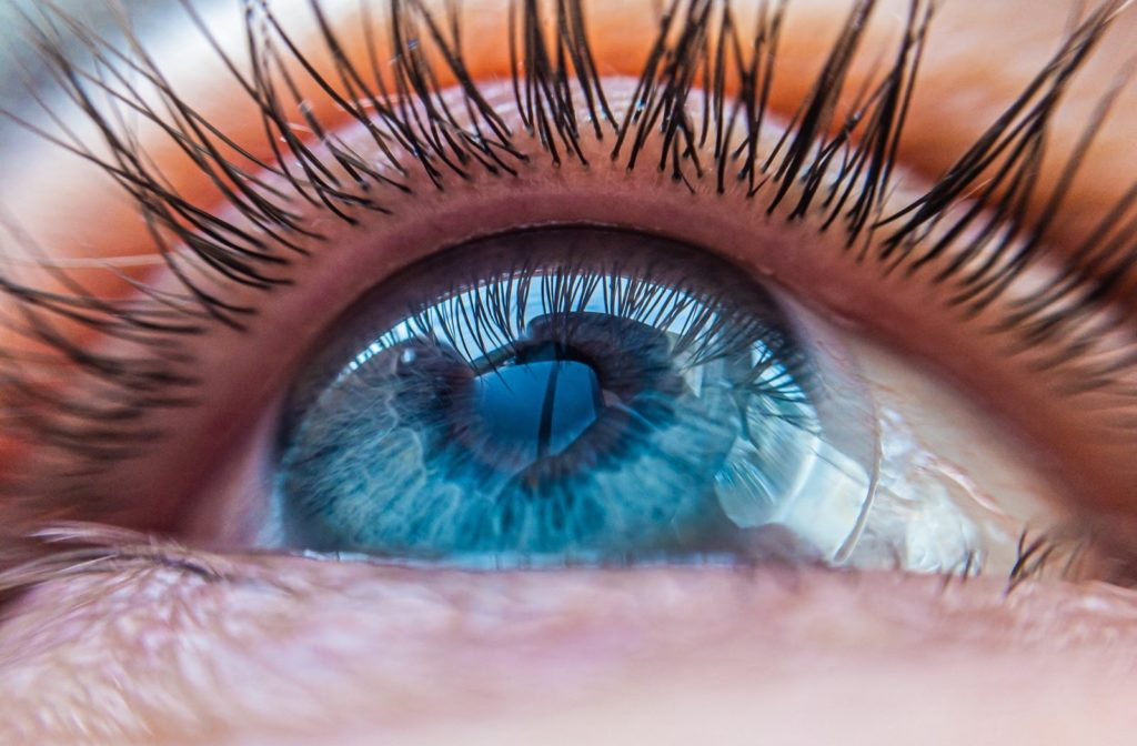 A scleral contact lens resting on a patient's eye