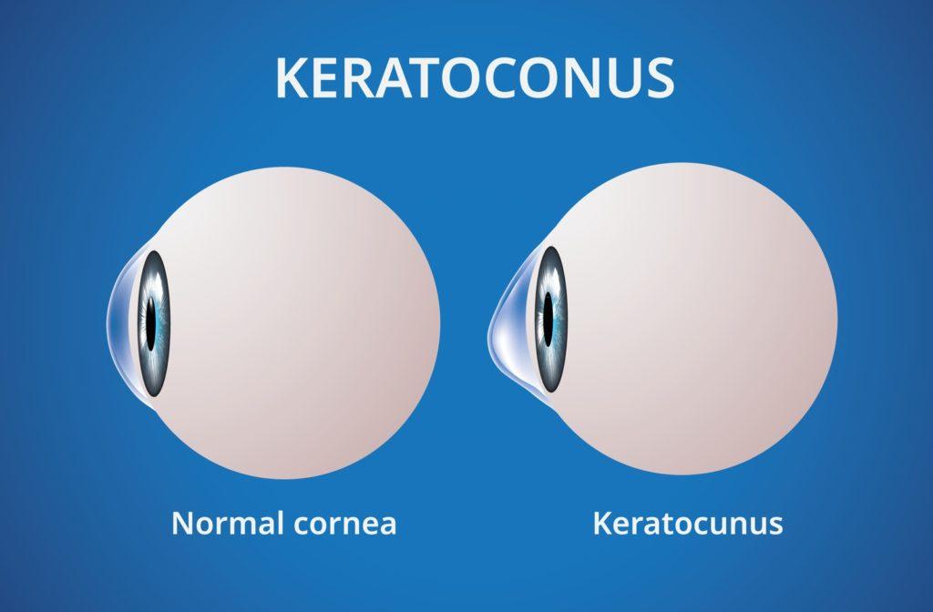 Illustration of normal cornea on the left and cornea with keratoconus on the right.