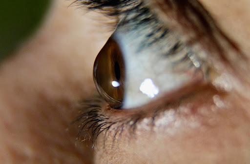 Close up of individuals eye with keratoconus